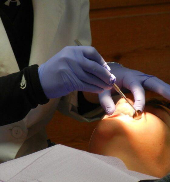 Perawatan gusi setelah cabut gigi